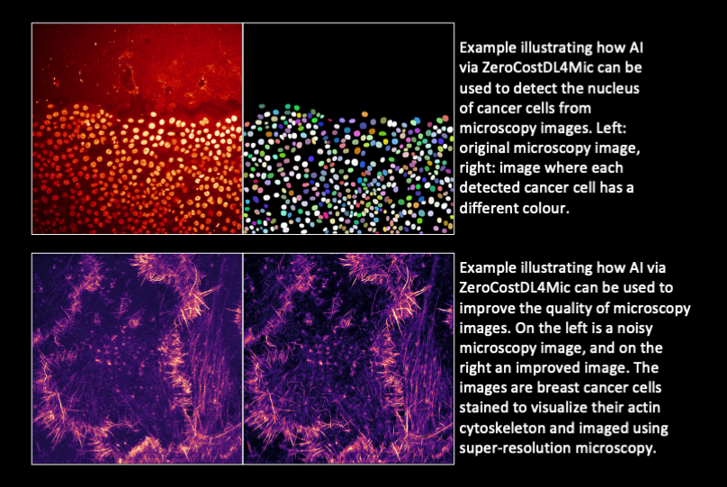 An easy-to-use platform is a gateway to AI in microscopy