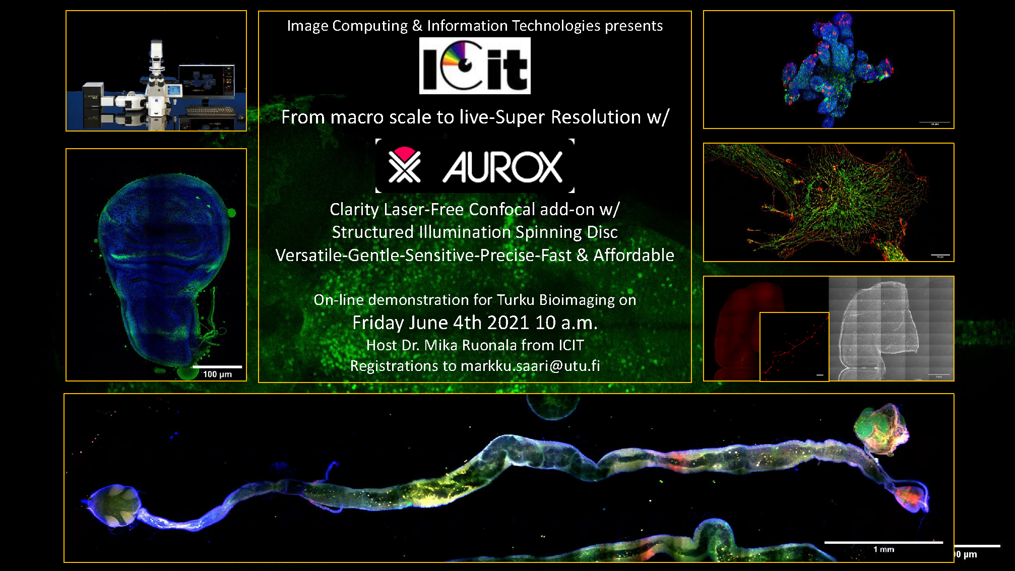 Welcome to Aurox Clarity fast confocal microscope demo